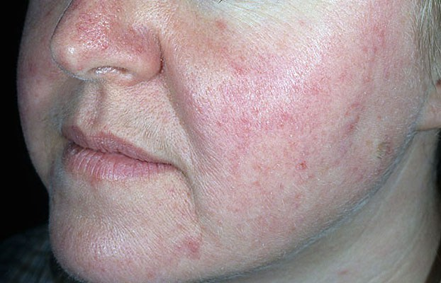 howard-cure-facial-redness-perla-hardcore