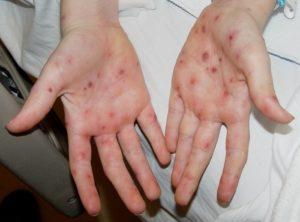Прыщи на ладонях - фото, причины и лечение