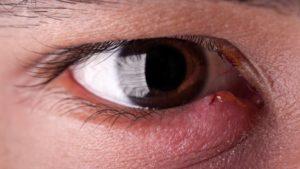 Прыщи на веке глаза - фото, все причины и как лечить