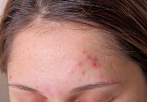 Сыпь между бровями говорит о воспалительных процессах кожных покровов