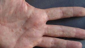 Аллергия - одна из причин прыщей на ладонях