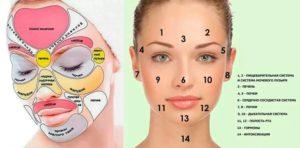 Прыщи располагаются на лице в зависимости от заболевания органов