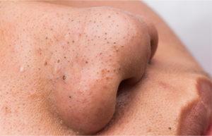 При появлении черных точек на носу стоит обратиться к дерматологу