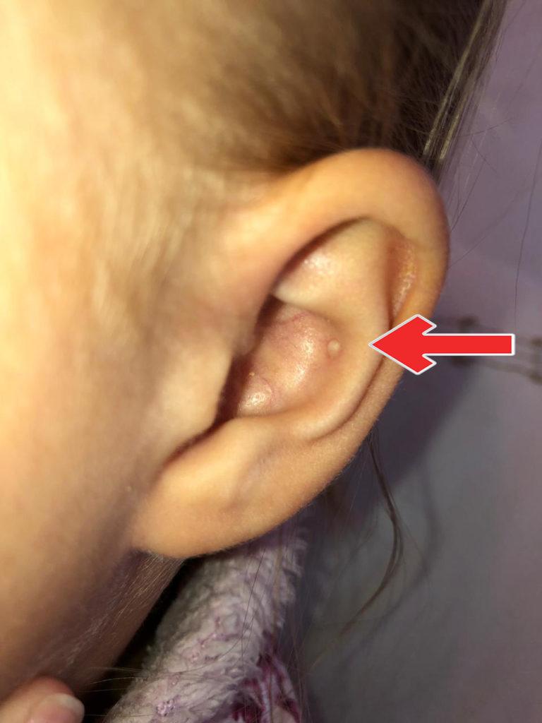 Поцарапал стенку наружного уха