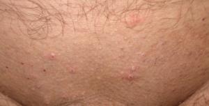 Высыпания на лобке могут быть спровоцированы бритьем