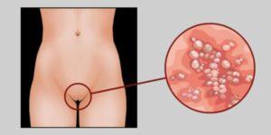 Прыщи на половых губах могут свидетельствовать о венерических инфекциях