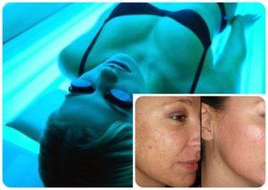 Эффективность солярия от прыщей на лице доказана косметологами