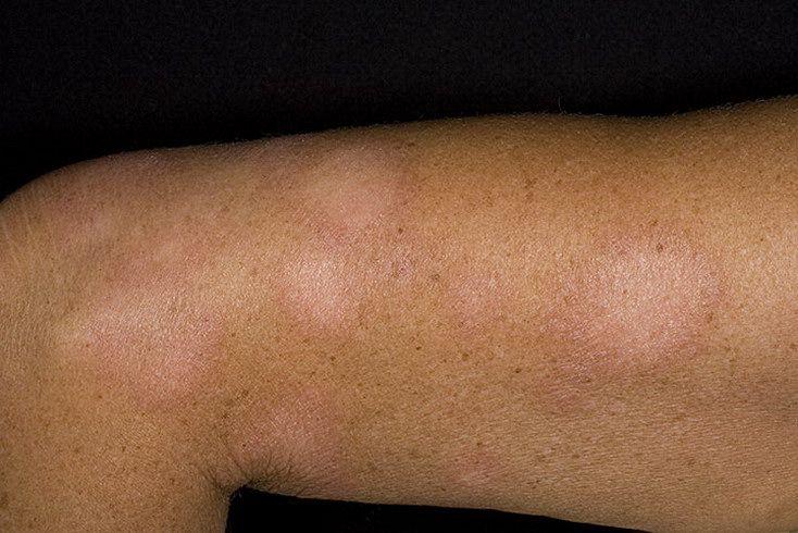 Почему появляется белые пятна на ногах