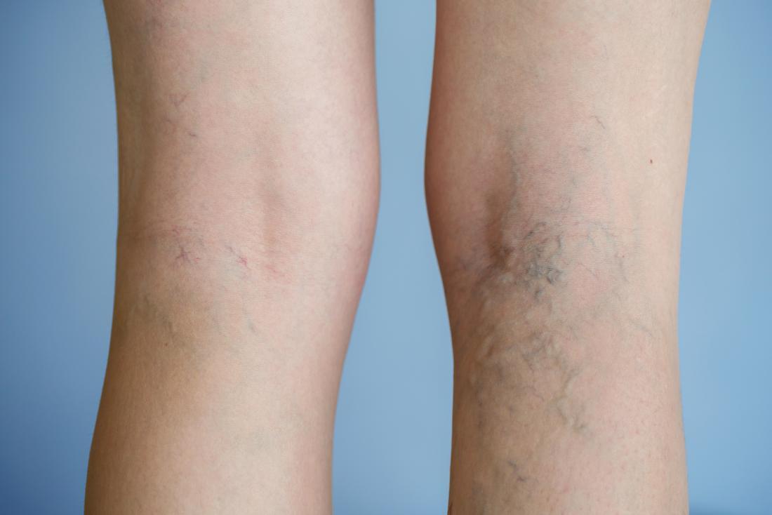 Боли в вене под коленом вызывает варикоз