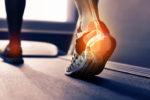 Горение в ногах бывает вызвано аллергией