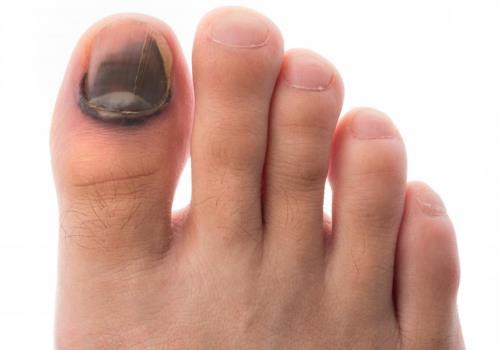 Что делать если появилась гематома на ноге после удара