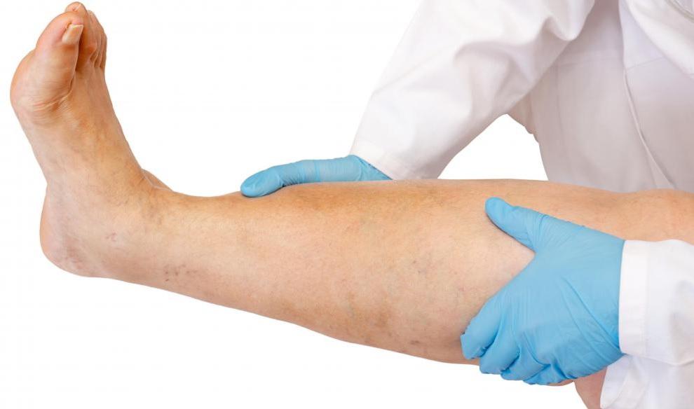 Почему появилась боль в голени и что делать
