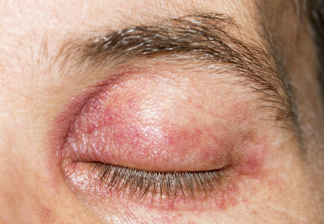 Как избавится от покраснения кожи вокруг глаз