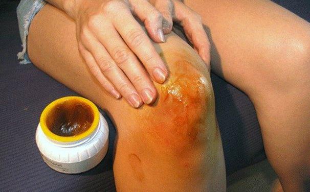 Народные средства при артрите коленки фото