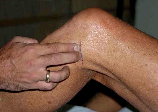 Чем опасна боль в колене при ходьбе