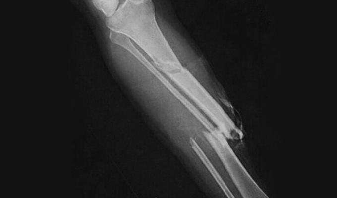 Нога после перелома болит
