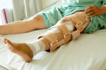После перелома нога еще долго болит