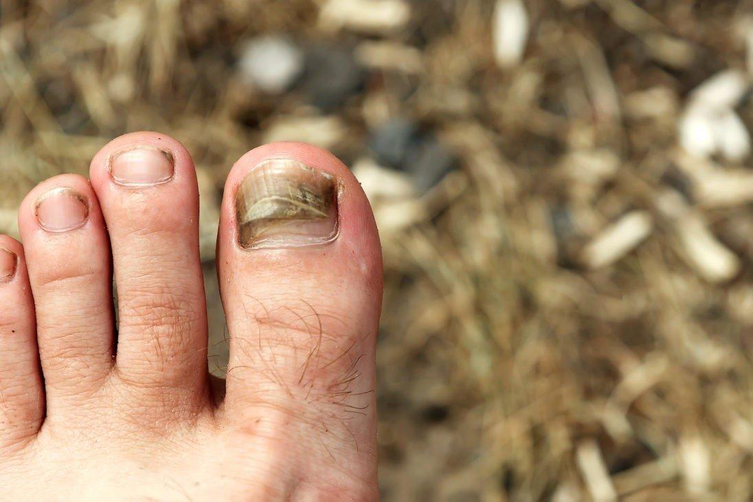 Почернение ногтя вызывает травма