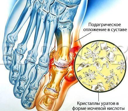 Отложение солей в суставах