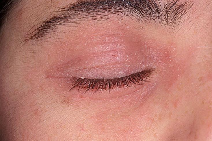 Покраснение вокруг глаз сопровождается шелушением кожи