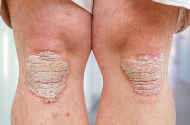 Псориаз - это аутоиммунное заболевание