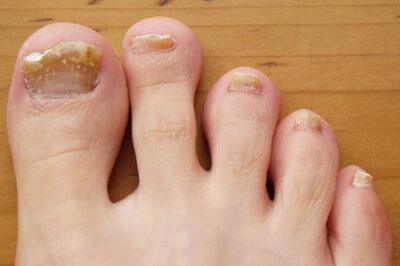 Ногти на ногах растут вверх по разным причинам