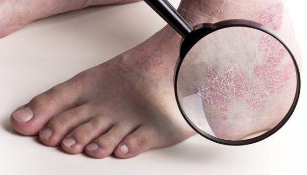 При сухости кожи ног стоит обратиться к дерматологу