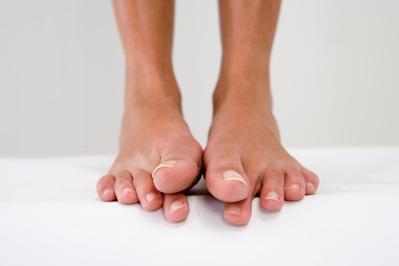 Нехватка кальция - одна из причин сведения пальцев на ногах