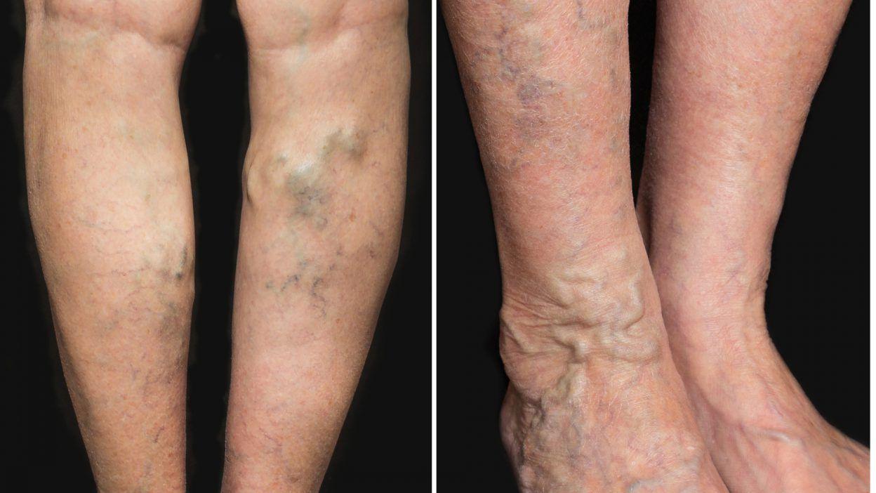 Почему болит вена на ноге под коленом