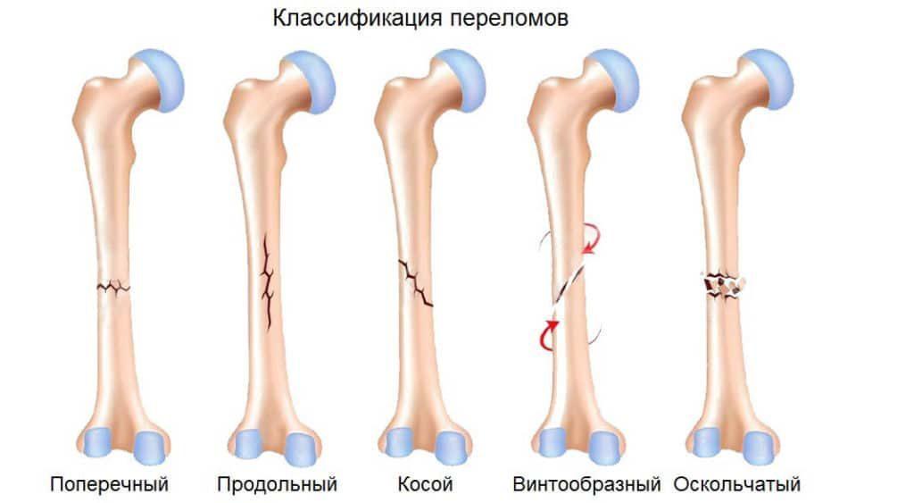 Нога после перелома болит thumbnail