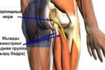 Защемление нерва в бедре бывает связано с разными причинами