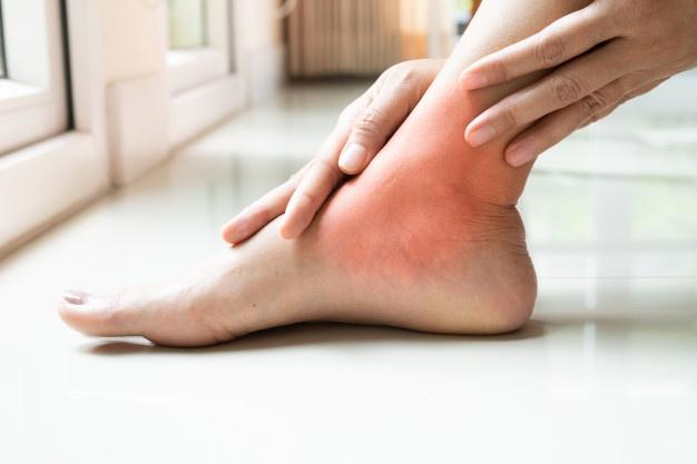 Боль в лодыжке может проявляться после бега