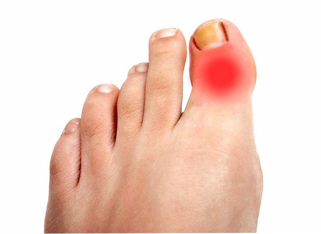 Боли пальца ноги бывают связаны с подагрой