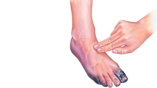 Сахарный диабет - основная причина почернения пальцев