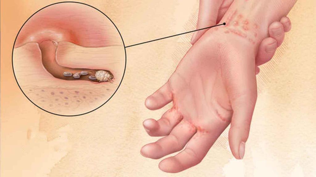 Почему у ребенка на теле появляется сыпь