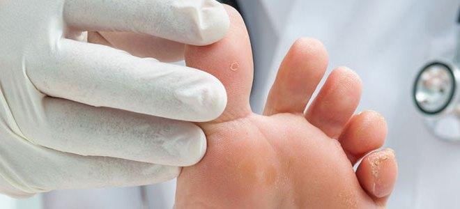 Как лечить мозоль на большом пальце ноги