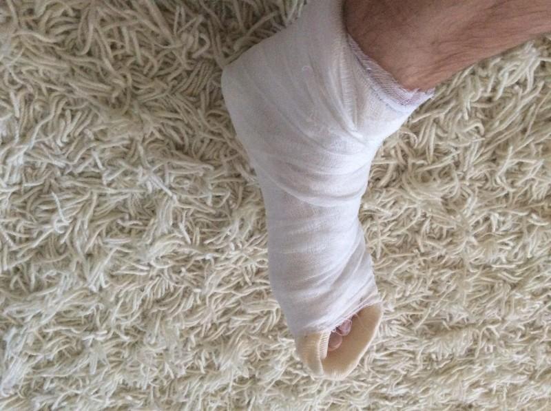 Перелом пятки - чем опасен и как быстро реабилитироваться