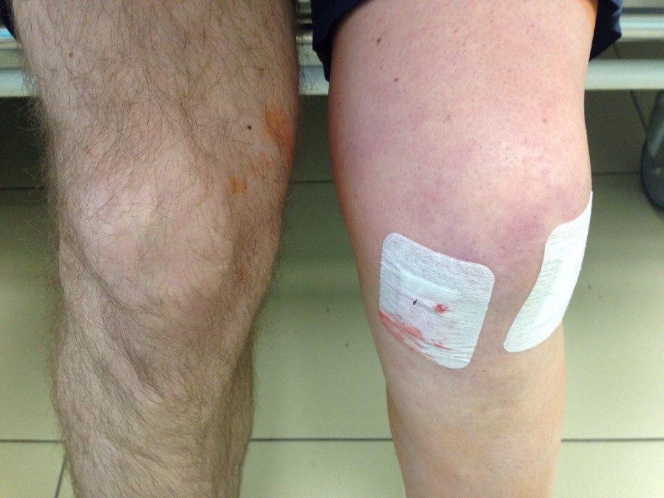 Синяки на коленках фото