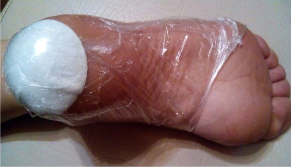 Мази от трещин на пятках с заживляющим эффектом