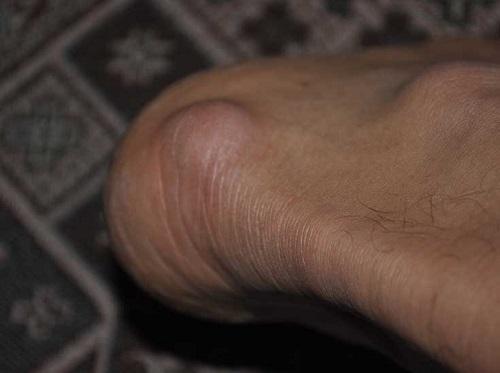 Почему в месте перелома на ноге появилась шишка