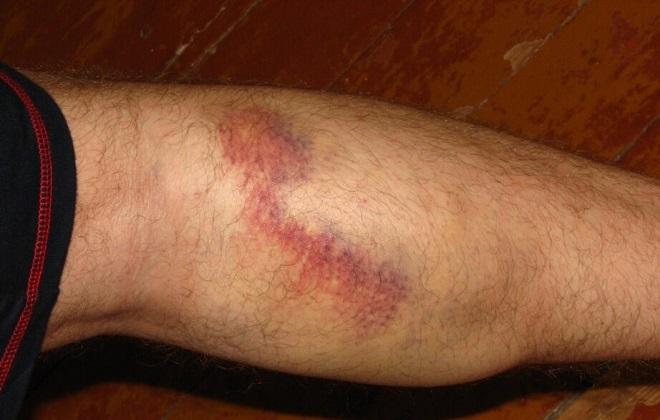 Вена на ноге может лопнуть из-за сильных нагрузок