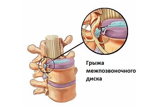 Боль в паху справа отдает в ногу у женщины