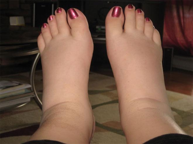 При опухании ног внизу нужно обратиться к врачу