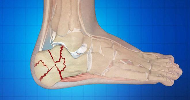 Перелом пятки появляется из-за травмы