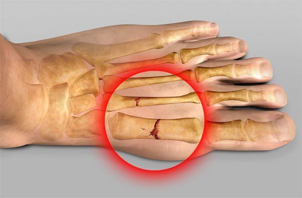 Перелом стопы - распространенный вид травмы