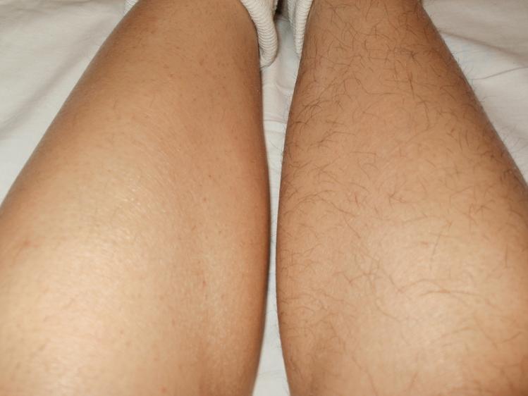 Эндокринные болезни - одна из причин, почему нет волос на ногах