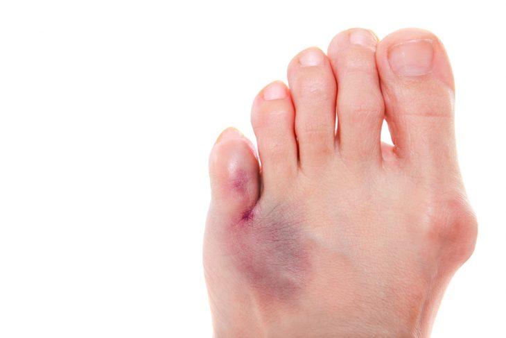 Почему посинел палец на ноге и болит