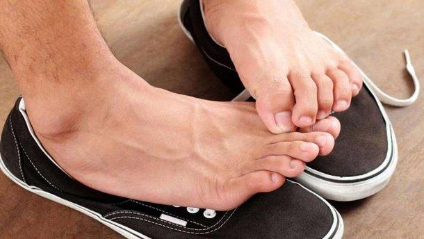 Потливость ног бывает вызвана многими факторами