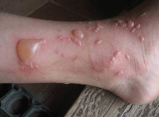Водянистые пузырьки на ноге могут появиться из-за аллергии