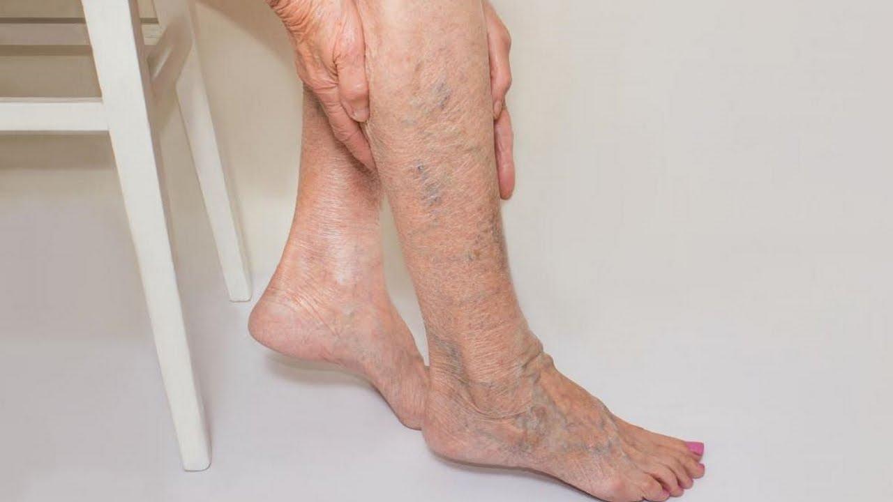 Почему появляются темные пятна на ногах